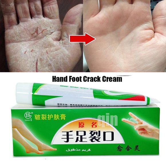 2Pcs/lot Chinese Cosmetics Hand Foot Crack Cream Heel Chapped Peeling Repair Anti Dry Crack Ointment Exfoliating Foot Cream