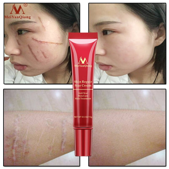 2Pcs Repair Scar cream Removal Acne Scars gel Stretch Marks Surgical scar Burn For Body Pigmentation Corrector care