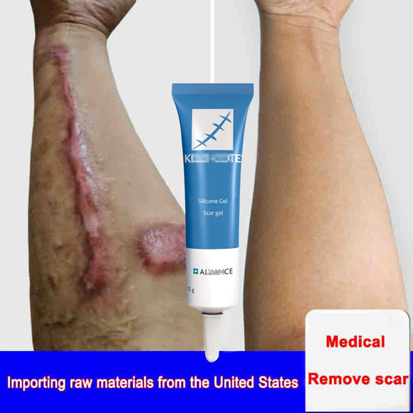 15g Scar Removal Cream Face Cream For Face Acne Scar Stretch Marks Remover Cream Skin Repair Face Cream Acne Spots Ba Ke - 88digital
