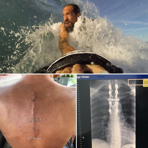 Surf Injury Recovered with Slyde Handboards