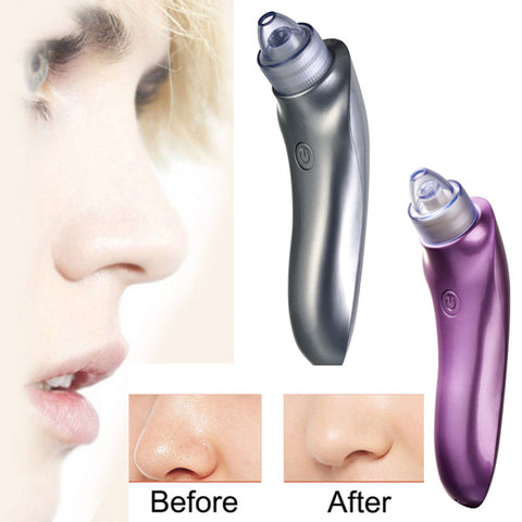 2019 2 Color Vacuum Electric Pore Cleaner Blackhead Vacuum Removal
