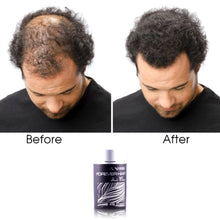 Load image into Gallery viewer, Forever Hair Fibers Hair Loss Solution Set - Black