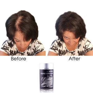 Forever Hair Fibers Hair Loss Solution Set - Dark Brown