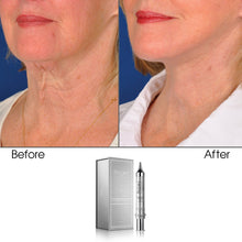 Load image into Gallery viewer, Age-Defying Apple and Grape Stem Cell Neck & Chest Cream, 10g