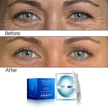Load image into Gallery viewer, Eye Care Anti-Aging Collection with Skincare Infuser (Bundle)
