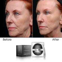 Load image into Gallery viewer, Skin Tightening Anti-Aging Collection (Bundle)