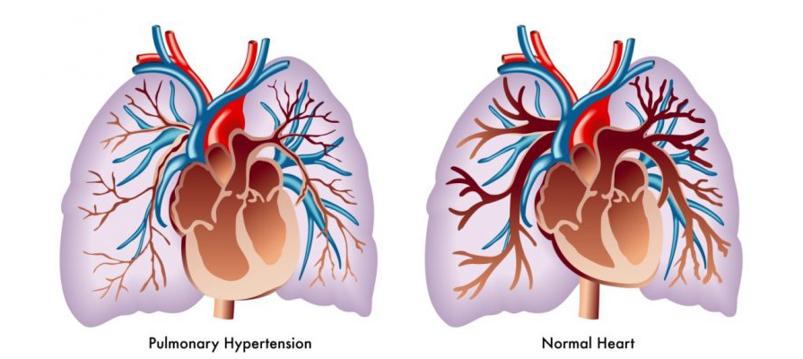 Sleep Apnoea and Pulmonary Hypertension