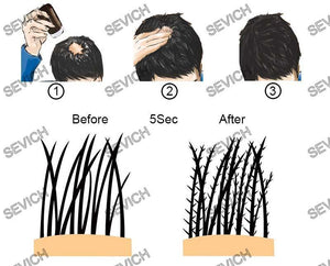 Sevich Hair Building Fibers | Hair Fibers Powder- [variant_title]