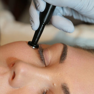Radio Frequency Eye Treatment