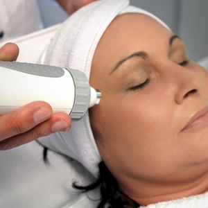 RF Skin Needling collagen induction therapy Gold Coast