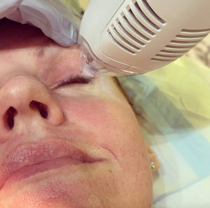 TFR Thermal Fractional Restoration