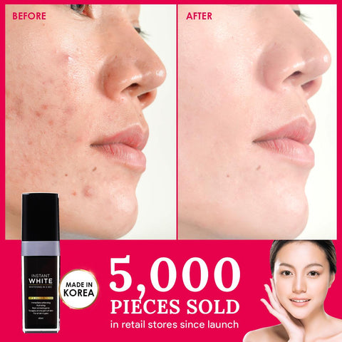 QBI Sg Instant Whitening Cream For Face Before and After