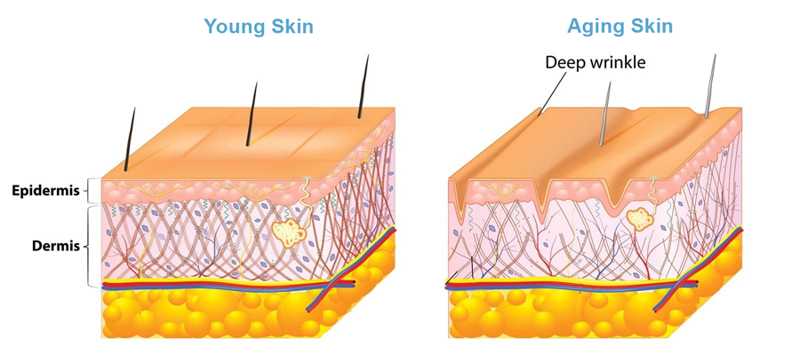 Young Vs. Aging Skin