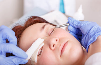 Blepharoplasty surgery eyelids