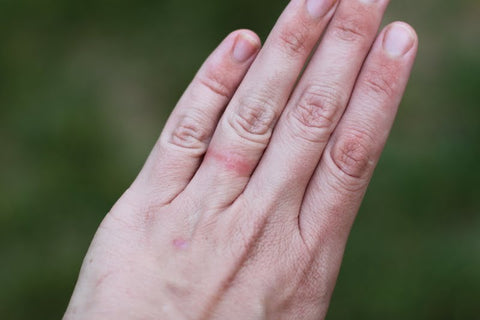 An outstretched hand with ring rash on the ring finger.
