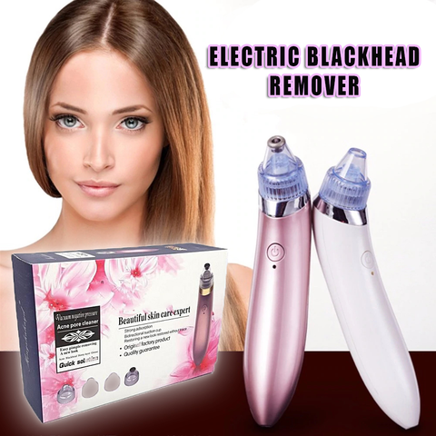 Image of Electric Blackhead Remover