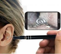 Ear Cleaner Endoscope