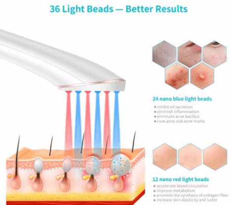 Red And Blue Light Acne Therapy Remover Treatment Kit