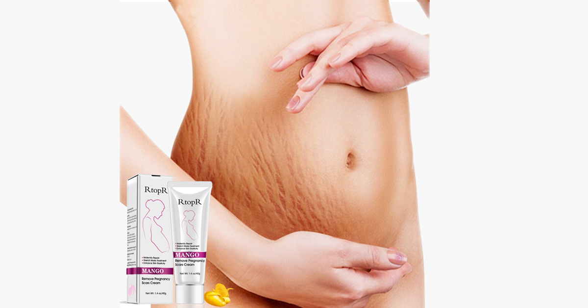 Pregnancy Scars and Stretch Mark Removal Cream
