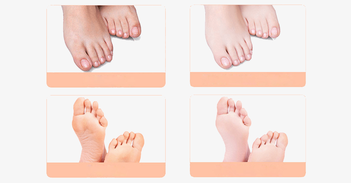 Baby Foot Exfoliating Mask (1 Pack) - FREE SHIP DEALS
