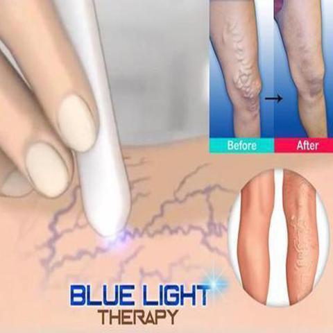 MEDICAL BLUE LIGHT LASER THERAPY TREATMENT PEN