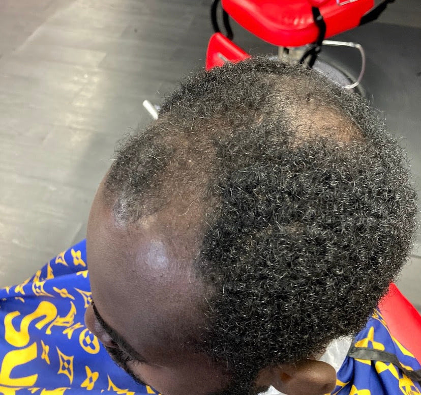 Hairline Restoration (Prices range from $175 to $300)