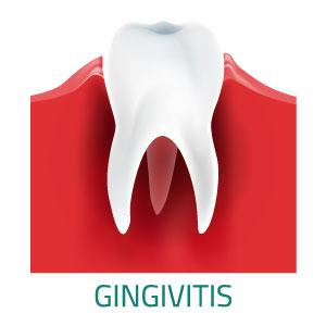 Home Remedies: Treating Gingivitis Using The Waterpik® Water Flosser