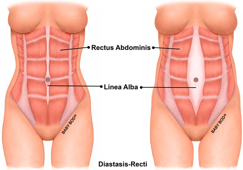 Diastasis Recti - What Is It? Pt. 1 of a Series