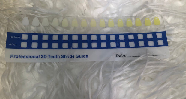 The Smile Corner Teeth Whitening Kit