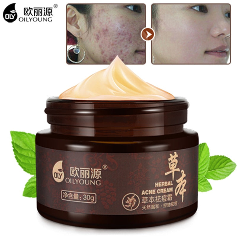 Herbal Acne Cream Anti Pimple