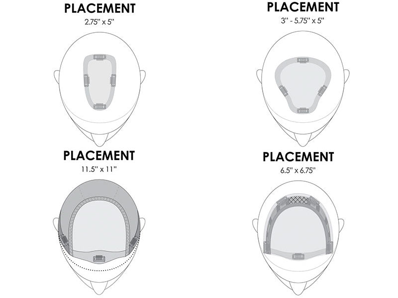 A diagram showing wig and hairpiece placement options