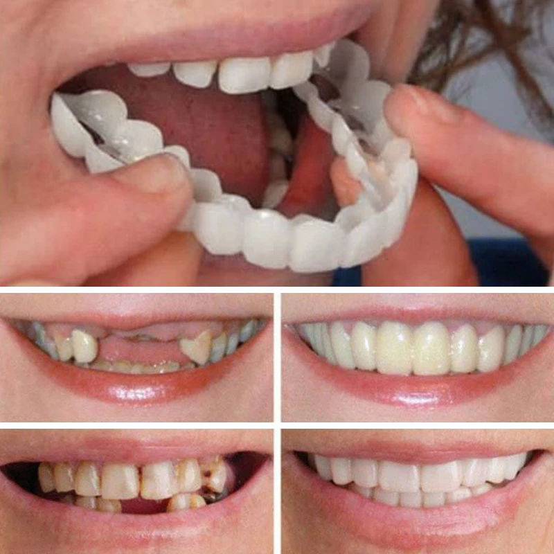 Magic Teeth Brace (HOT SALE)【ONLY 44 LEFT】