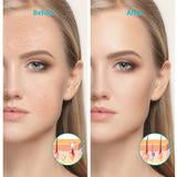 Load image into Gallery viewer, Professional Acne & Skin Rejuvenation Light Therapy Treatment Device