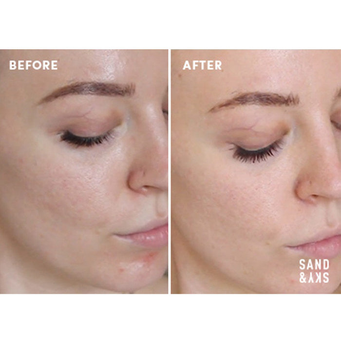 An overhead view of a woman's before and after picture, showing the effects of the exfoliating treatment.
