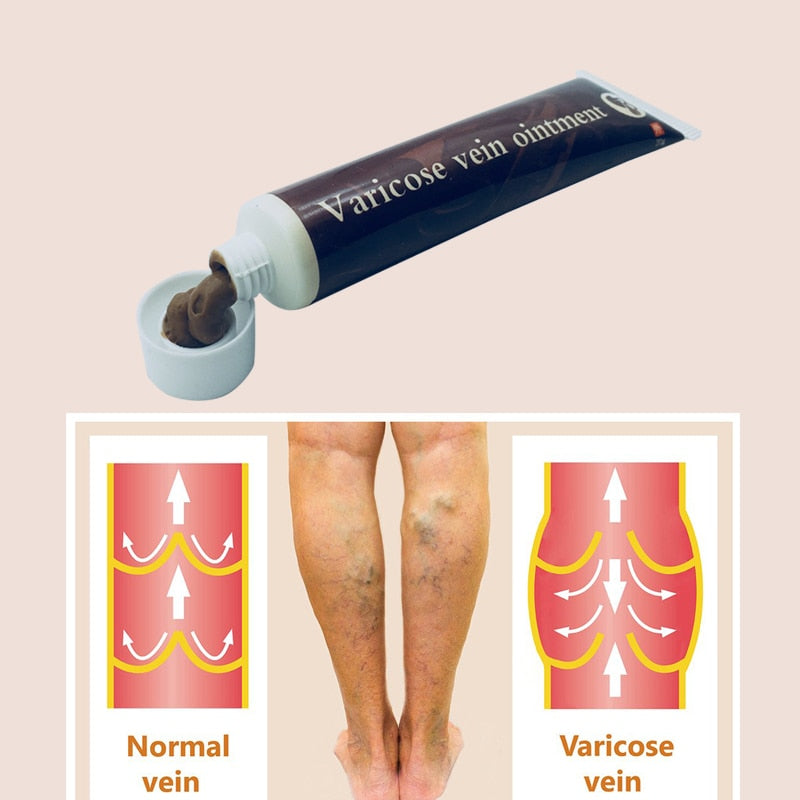 Cream Effective cure Vasculitis Phlebitis Spider Veins Pain Varicose Angiitis ointment Health Care, (Varicose Veins Treatment )