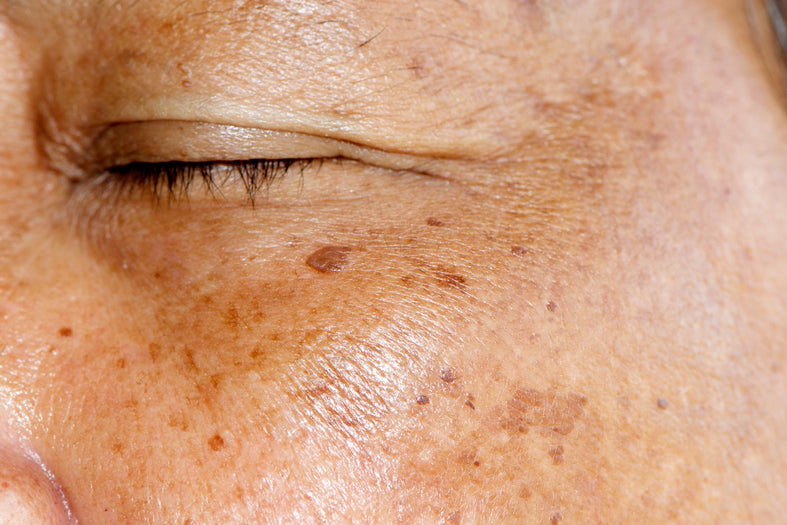 Melasma: A Common And Treatable Skin Condition
