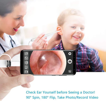 Load image into Gallery viewer, Multifunctional HD clean otoscope