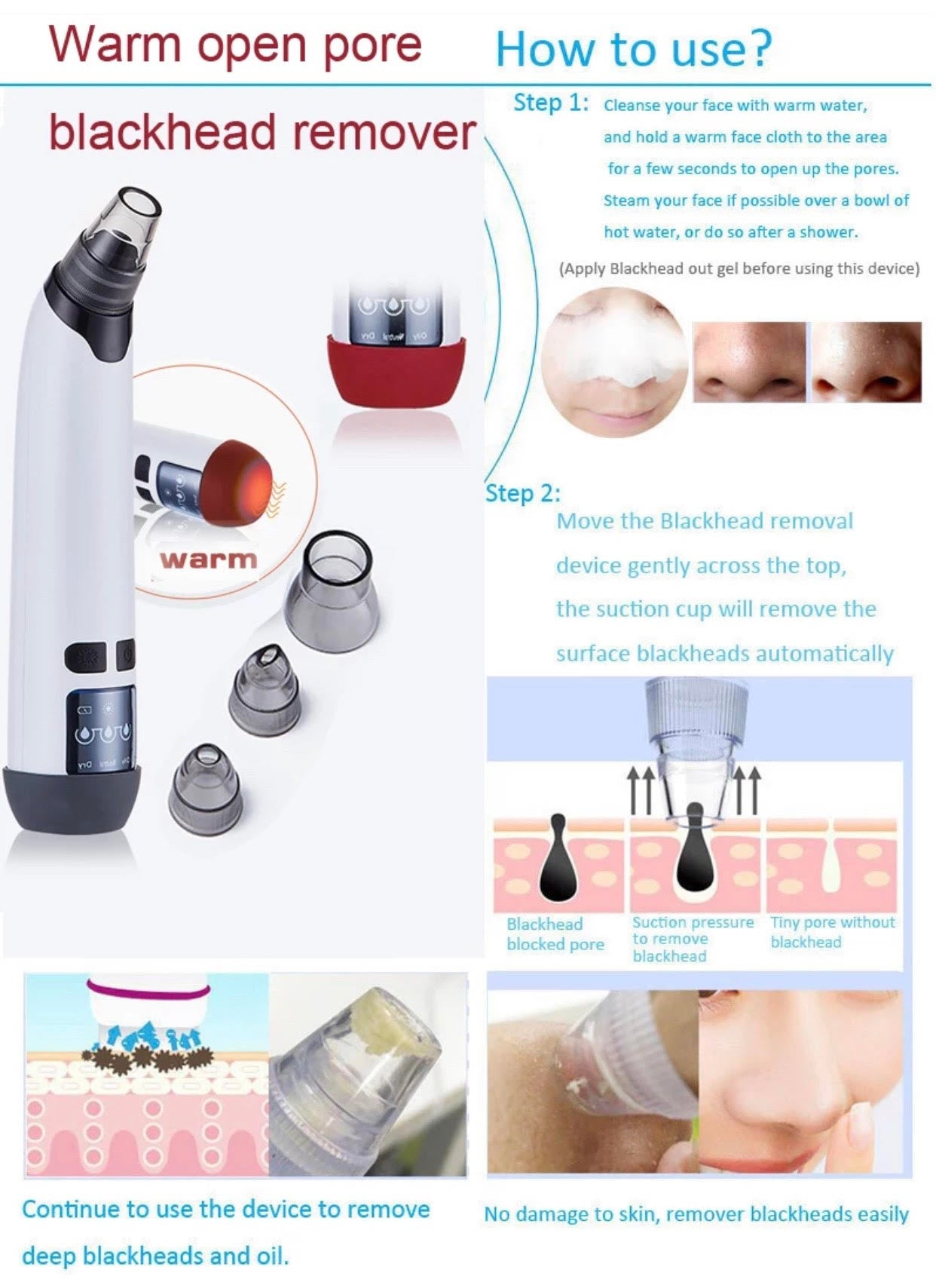 Vacuum Blackhead Remover with Warmer Base ~ Ultimate All-In-One Device (AU Stock)