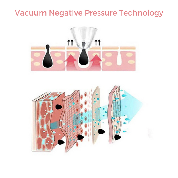 BeautiesBliss-lumell-vacuum_blackhead_nose-pore_suction_remover_vacuum-negative-pressure-technology-Microdermabrasion-Handset