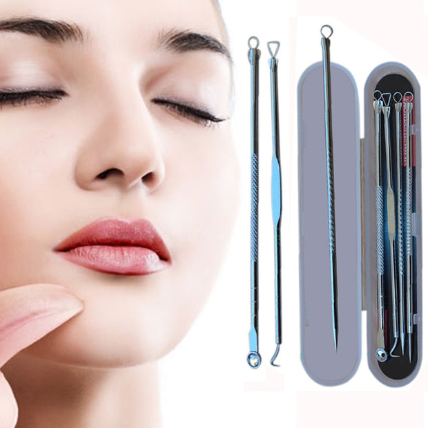4pcs Stainless Steel Acne Blemish Pimple Extractor Tool - Beauties Bliss