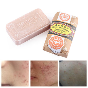 Sandalwood Whitening Soap Bar Acne Pimple Facial Nose Blackhead Remover Cleaner Anti Bacterial For Bath Shower Body Care