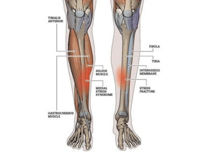 Common injuries for triathletes and endurance runners | Shin Splints