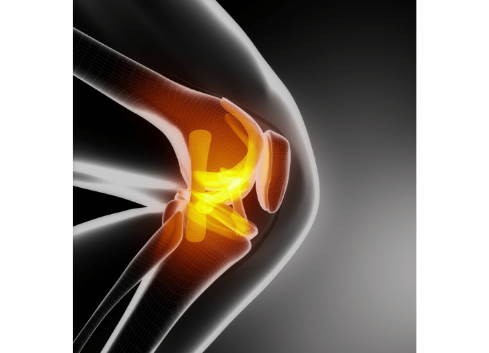 Common injuries for runners and triathletes | Runner's knee