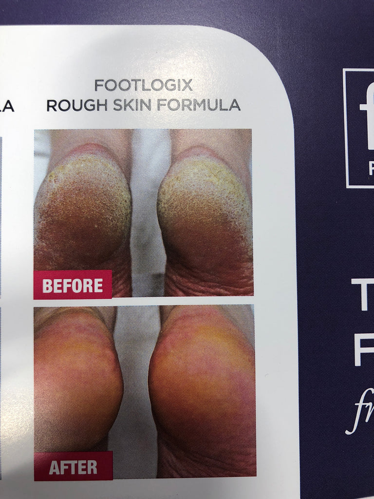 Footlogix Rough Skin Formula