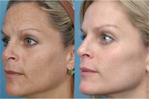 Photofacial IPL before and after Body Lab Beauty and Wellness