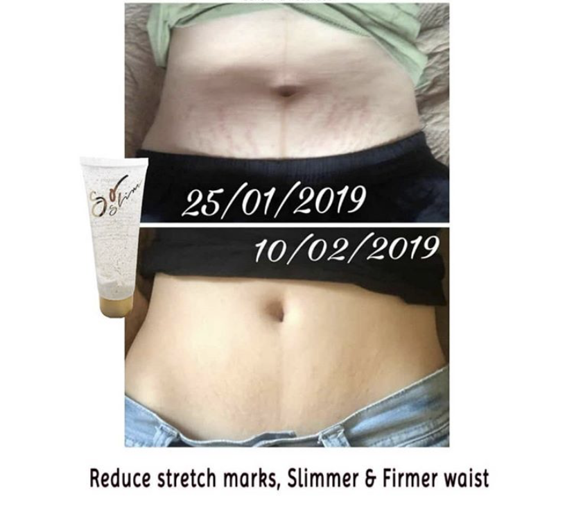 SoSlim Slimming Gel Slimming Lotion Slimming Serum SuSenji Gold EnzSerum Slimming Coffee Slimming Tea Fast Slimming Method