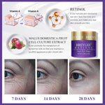 Eye Cream Hyaluronic Acid Vitamin C Retinol Removal Dark Circles Anti Wrinkle Moisturizing Eye Cream SSwell - Smoulder Products