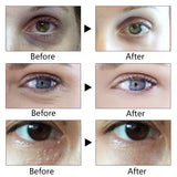 Anti Wrinkle Eye Cream Anti-Puffiness Dark Circle Anti-Aging Hyaluronic Acid Moisturizer Eyes Creams Firming Eye Skin