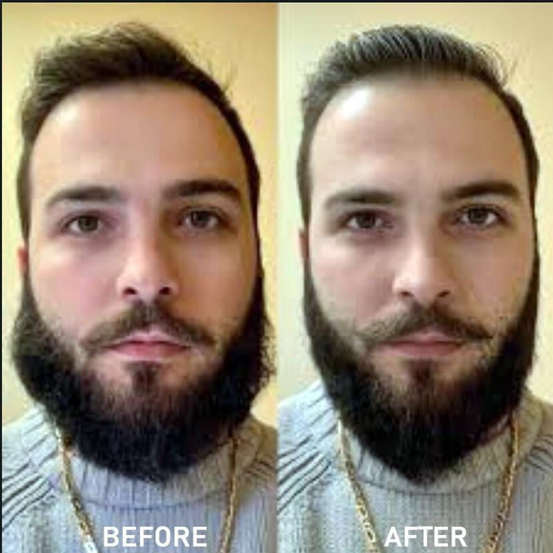Professional Beard Straightener