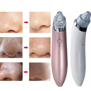 Ultimate Blackhead Remover (2 Versions) - 1StopShop